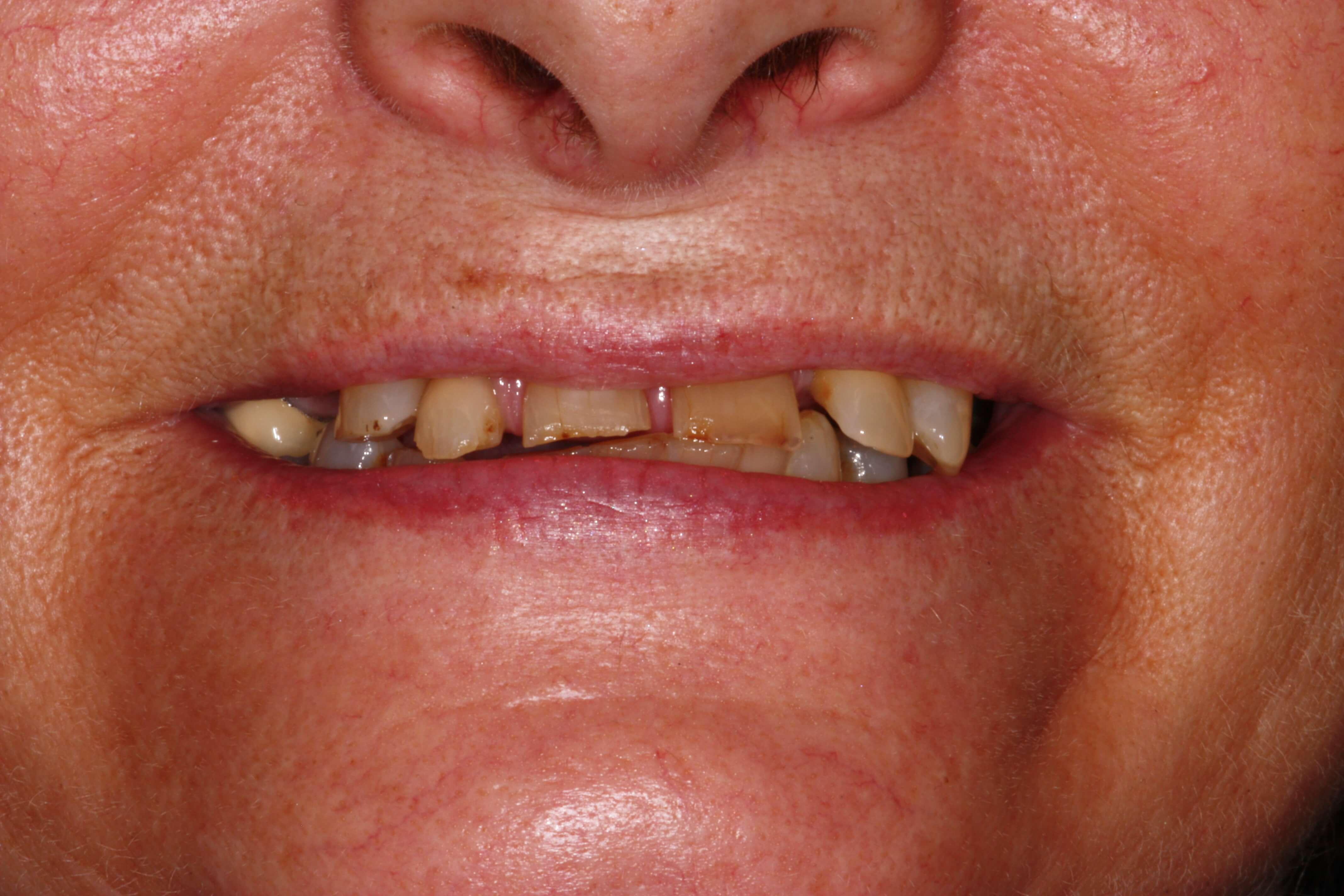 dentist wirral